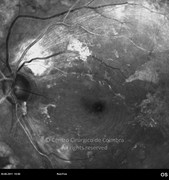 Red-free photograph showing an epiretinal membrane at the posterior pole