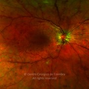 Ultra-widefield photograph (amplification) of proliferative diabetic retinopathy in a 25-years-old female patient with diabetes diagnosed 13 years ago.This patient had four episodes of hyperglycemic coma. Note the retinal neovascularization, macular edema, and severe neovascularization of the optic disc. Fundus shows some laser treatment in the retinal periphery. Visual acuity was 20/200 RE