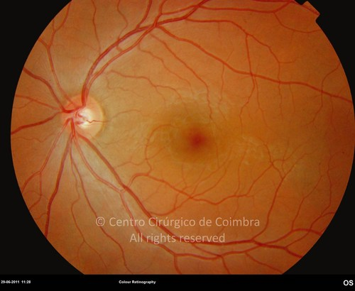 Non-Proliferative Diabetic Retinopathy - Clinical Case 03