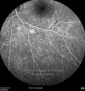 Fluorescein angiogram showing bright hyperfluorescent microaneurysms and some areas of leakage. Retinal hemorrhages block fluorescence and appear as hypofluorescent spots