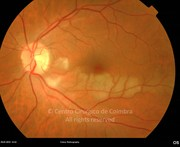 Fundus photograph of cilioretinal retinal artery occlusion in a 58-years-old male patient who complains of central scotoma in the left eye. Visual acuity: 20/28 LE