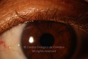 Anterior segment photograph before cataract surgery, showing no evidence of blepharitis at left eye