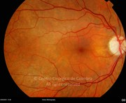 9 months after surgery. Visual acuity: 20/20 OU