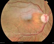 Fundus photograph of branch central retinal artery occlusion. Note the withish appearance in the territory of the branch artery and the embolus located in the superior edge of the optic disc.Visual acuity: 20/50 RE