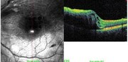 OCT vertical line-scan in same case showing macular retinal detachment
