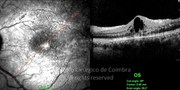 OCT line-scan shows macular edema