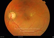 Fundus photograph, showing cystoid macular edema