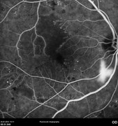 Fluorescein angiogram at early phase showing visible signs of proliferative diabetic retinopathy;  notice the neovascularization inferior to the optic disc, the capillary dropout, as well as the irregular contour and increased diameter of the foveal avascular zone