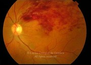Fundus photograph of supero-temporal vein occlusion in a 65-years-old male patient who complained of vision loss for the past 21 days. Note the intraretinal hemorrhages in territory of the supero temporal retinal vein, following the nerve fibers along their course. Visual acuity: 20/100 LE