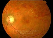 Fundus photograph in same case, after 2 treatments with intraocular injection of bevacizumab. Note the reabsorption of retinal hemorrhages