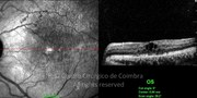 OCT line-scan showing cystoid macular edema