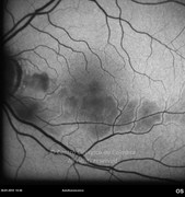 Autofluorescence photograph of cilioretinal retinal artery occlusion, in same case. Note the arteriolar branch narrow