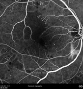 Fluorescein angiogram at early phase showing visible signs of proliferative diabetic retinopathy; notice the neovascularization inferior to the optic disc, the cappilary dropout, as well as the irregular contour and increased diameter of the foveal avascular zone