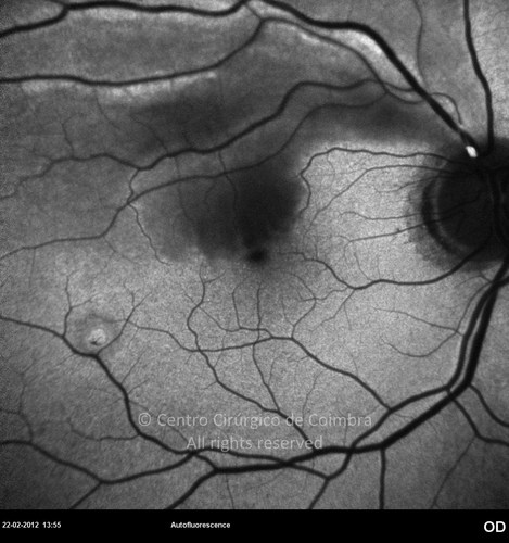 Branch Central Retinal Artery Occlusion - Clinical Case 01