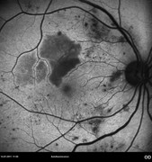 Fundus autofluorescence showing, areas of hypoautofluorescence due to blockage by intra-retinal hemorrhages