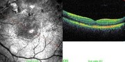 OCT line-scan in same case shows recovery of retinal structure