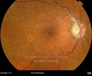 Fundus photograph 1 day after epiretinal membrane surgery. Note the triamcinolone granules on the retina