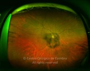 Ultra-widefield photograph shows the shadow of cataract on the retinal fundus. HbA1c=11,4%