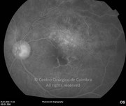 Fluorescein angiogram 1 year after branch retinal vein occlusion. Note the late exsudation