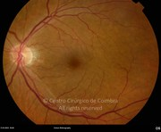 Fundus photograph of left eye in same patient. Visual acuity: 20/60 RE; 20/50 LE