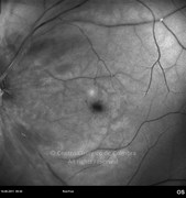 Red-free photograph of central retinal artery occlusion