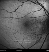 6 weeks after intraocular injection of bevacizumab