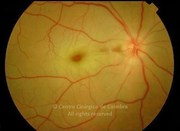 Fundus photograph of a central retinal arterial occlusion in acute phase in a 56-years-old male patient. The retina has a typical whitish appearance (edema) with a cherry red spot present in the foveolar region
