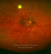 Ultra-widefield photograph of central retinal vein occlusion in a 60-years-old male patient. The disc is edematous. There are areas of hemorrhage in all quandrants and multiple flame-shaped hemorrhage in the posterior pole