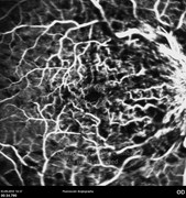 Fluorescein angiogram in the acute phase showing multiple hypofluorescent areas due to blockage by intraretinal hemorrhages