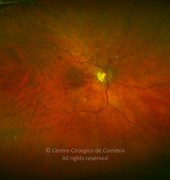 Ultra widefield fundus photograph (magnification) 5 months after the initial presentation and after intravitreal injection of bevacizumab