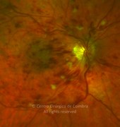 Fundus photograph, 4 months after presentation. Note the flame shaped hemorrhages, and hemorrhagic macular edema