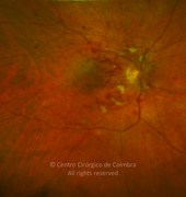 Fundus photograph, 1 month after presentation