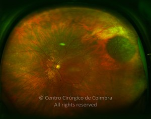 Congenital Hypertrophy of the Retinal Pigment Epithelium
