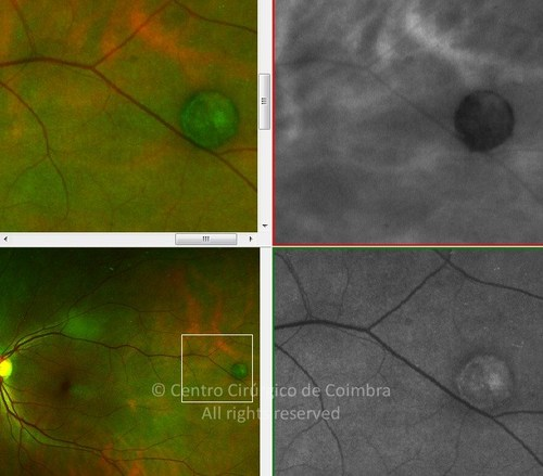 Congenital Hypertrophy of the Retinal Pigment Epithelium - Clinical Case 03