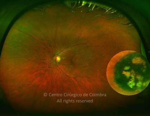 Congenital Hypertrophy of the Retinal Pigment Epithelium - Clinical Case 02