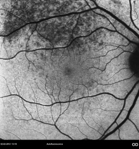 Ocular Manifestations of Syphilis