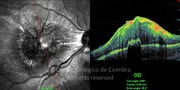 OCT line-scan showing a highly reflective mass protruding above the retinal pigment epithelium