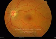 Fundus photograph demonstrating the disappearance of retinal changes, after treatment. Visual acuity: 20/20 LE