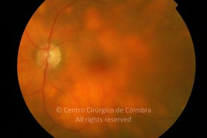 Acute Posterior Multifocal Placoid Pigment Epitheliopathy