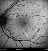 Autofluorescence photograph reveals retinal pigmented epithelium lesions