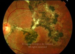 Subretinal Fibrosis and Uveitis Syndrome