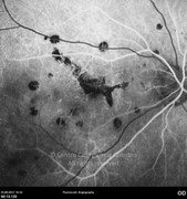 Fluorescein angiography at arterial phase