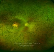 Ultra-widefield photograph in the same patient. Note the significant reduction of vascular diameter, pseudo-colobomatous macula and abundant pigmentary deposits inside and outside the vascular arcades, and pale optic disc