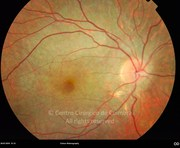 Fundus photograph in a 21-years-old male patient with LCHAD deficiency (long-chain 3-hydroxyacil.coA dehydrogenase). Visual acuity: 20/20 OU