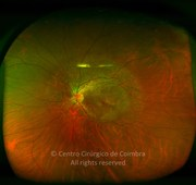 Ultra-widefield photograph in same case of LCHAD deficiency