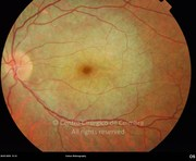 Fundus photograph in a 21-years-old male patient with LCHAD deficiency (long-chain 3-hydroxyacil.coA dehydrogenase). Visual acuity was 20/20 OU