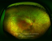 Ultra-widefield photograph after treatment, 3 years later. Visual acuity: 20/160 RE