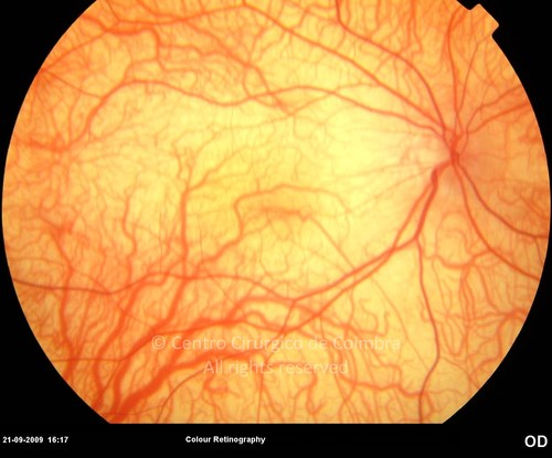 Ocular Albinism - Clinical Case 01