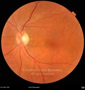4 months after epiretinal membrane removal