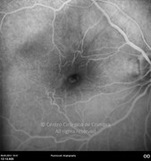 Fluorescein angiogram showing macular leakage